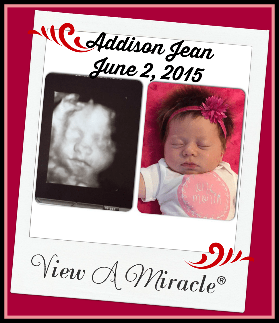 View a Miracle 4D Ultrasounds