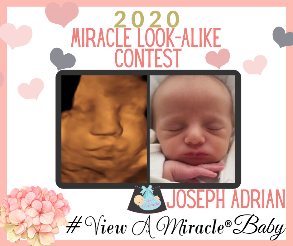 2020 MIRACLE LOOK-ALIKE CONTEST