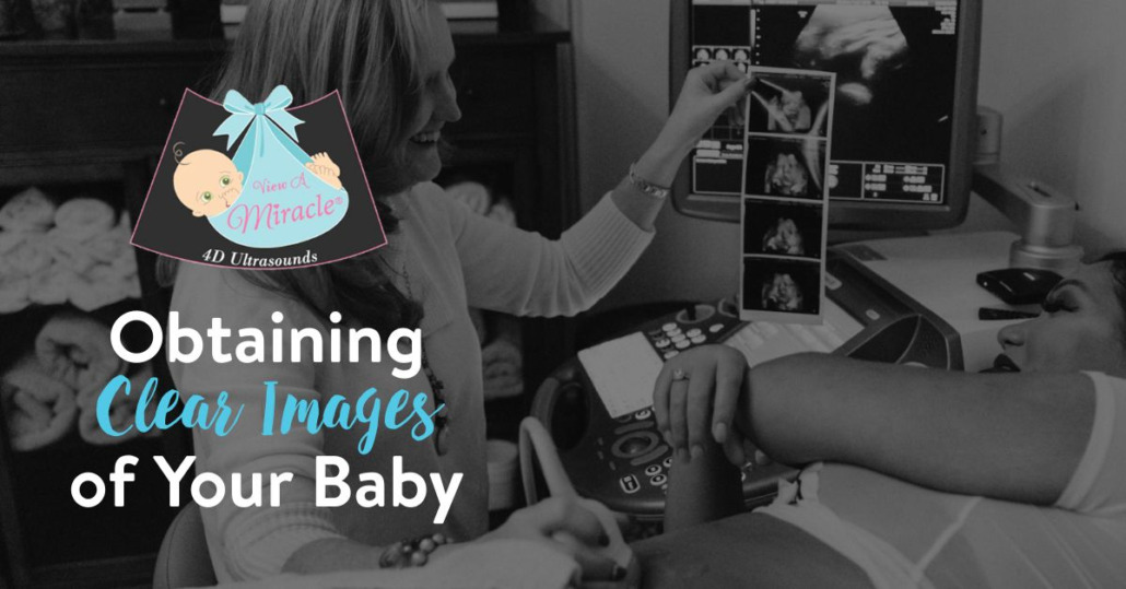 Obtaining Clear Images of Your Baby