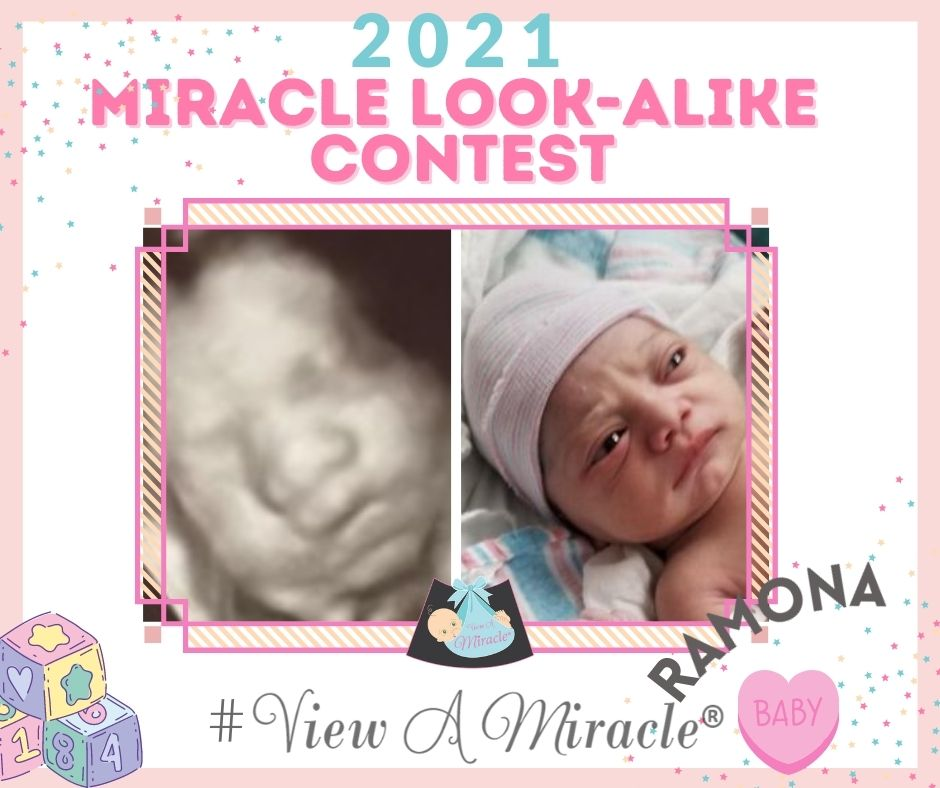 Miracle Look-Alike Contest